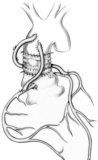 Aortic Valve Translocation for Severe Prosthetic Valve
