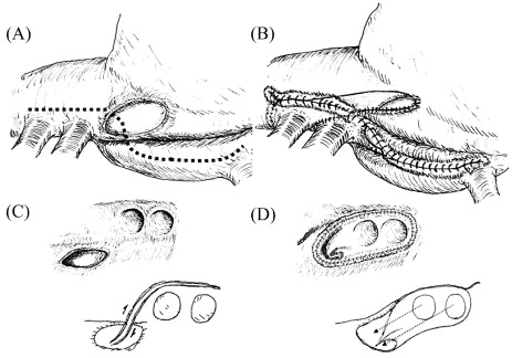 Modified cavoatriotomy for combined PAPVC repair and maze