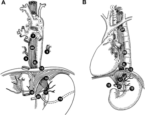 Proposed Modification of Nodal Status in AJCC Esophageal