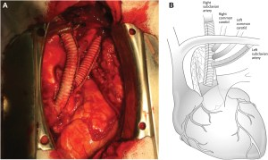 SingleStage Hybrid Repair of Right Aortic Arch With
