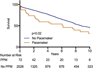 Need for Permanent Pacemaker After Surgical Aortic Valve