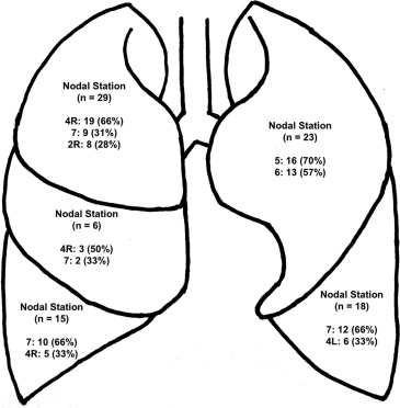 Clinical Misstagings and Risk Factors of Occult Nodal