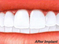 dental implants and veneers