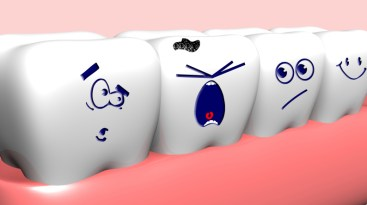 What You Should Know About Impacted Wisdom Teeth