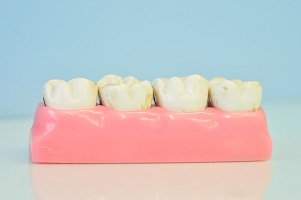 5 Benefits of Porcelain Veneers For Your Health