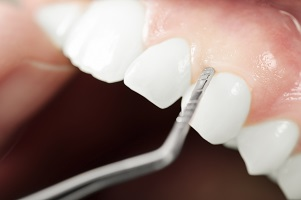 Dealing With Gum Disease: Scaling and Root Planing