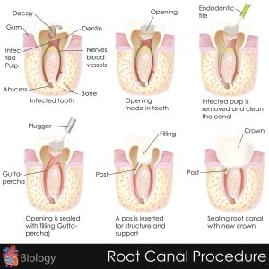 Common Root Canal Myths You Shouldn't Believe
