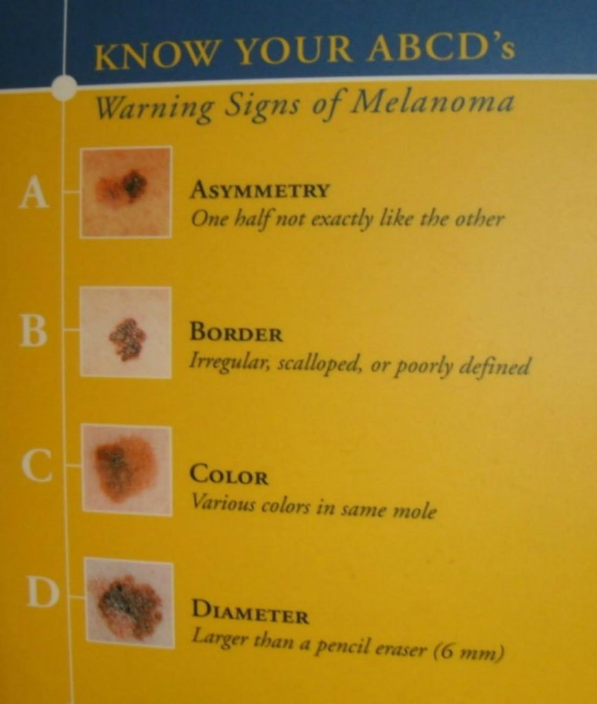 Melanoma Skin Cancer Still a Deadly Problem