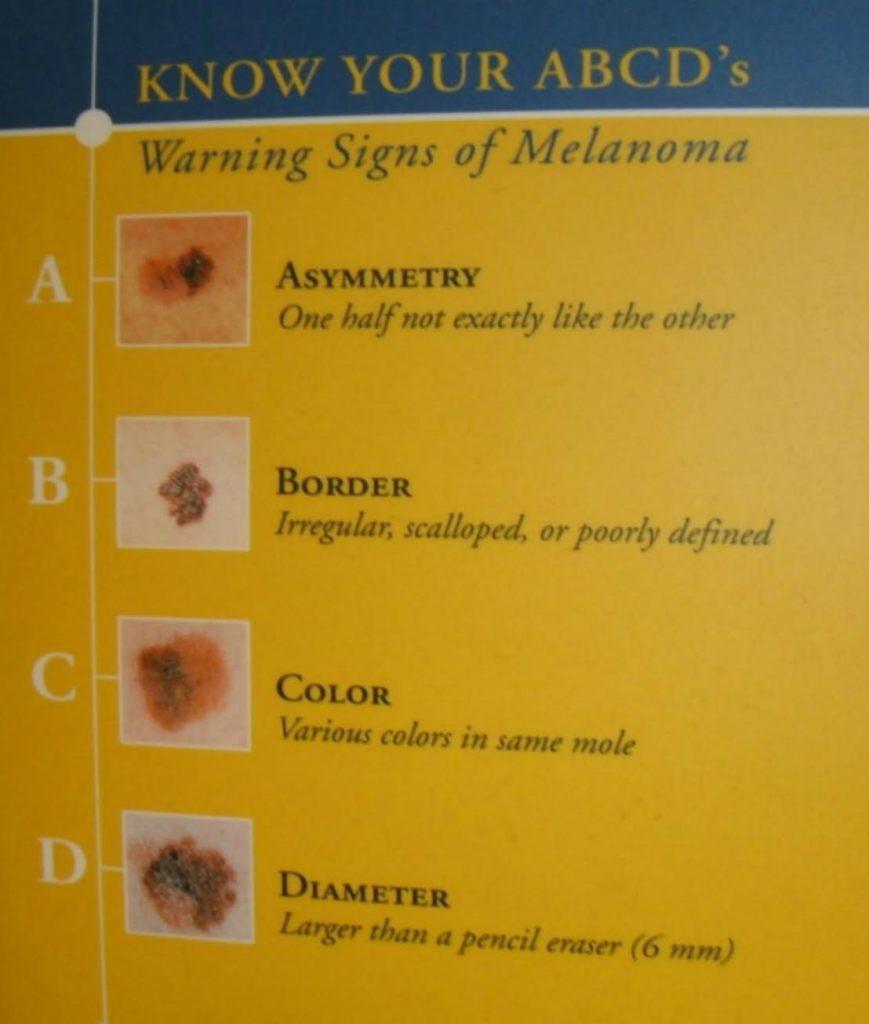Melanoma Skin Cancer Still a Deadly Problem