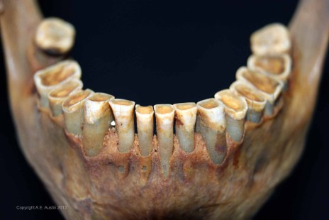 The effect of years of grit on dentition.