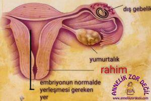 """7-İlk Kan Sonuçları """"NE HAMİLESİN NE DEĞİLSİN"""""""