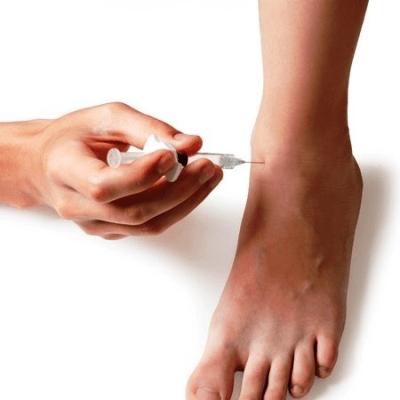 Indicações de uso - Terapia Anodyne - Dormência nos pés