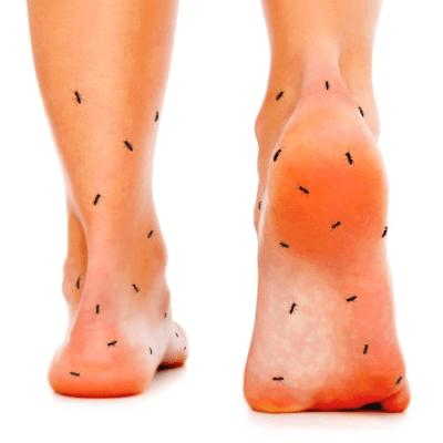 Indicações de uso - Terapia Anodyne - Formigamento nos pés