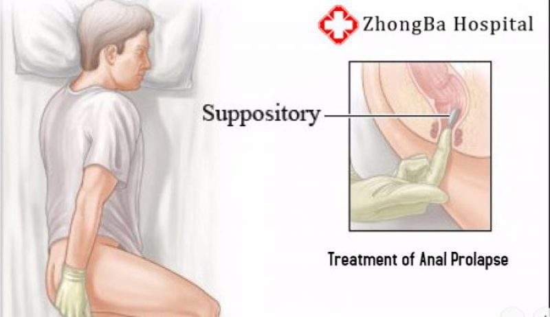 anal prolapse gastroenterologist in lahore bawaseer ka ilaj piles treatment chinese specialist in lahore gastrointestinal specialist