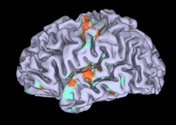 Cervello depresso incapace di andare in 'stand by'