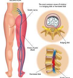 disc nerve pain [ 852 x 1000 Pixel ]