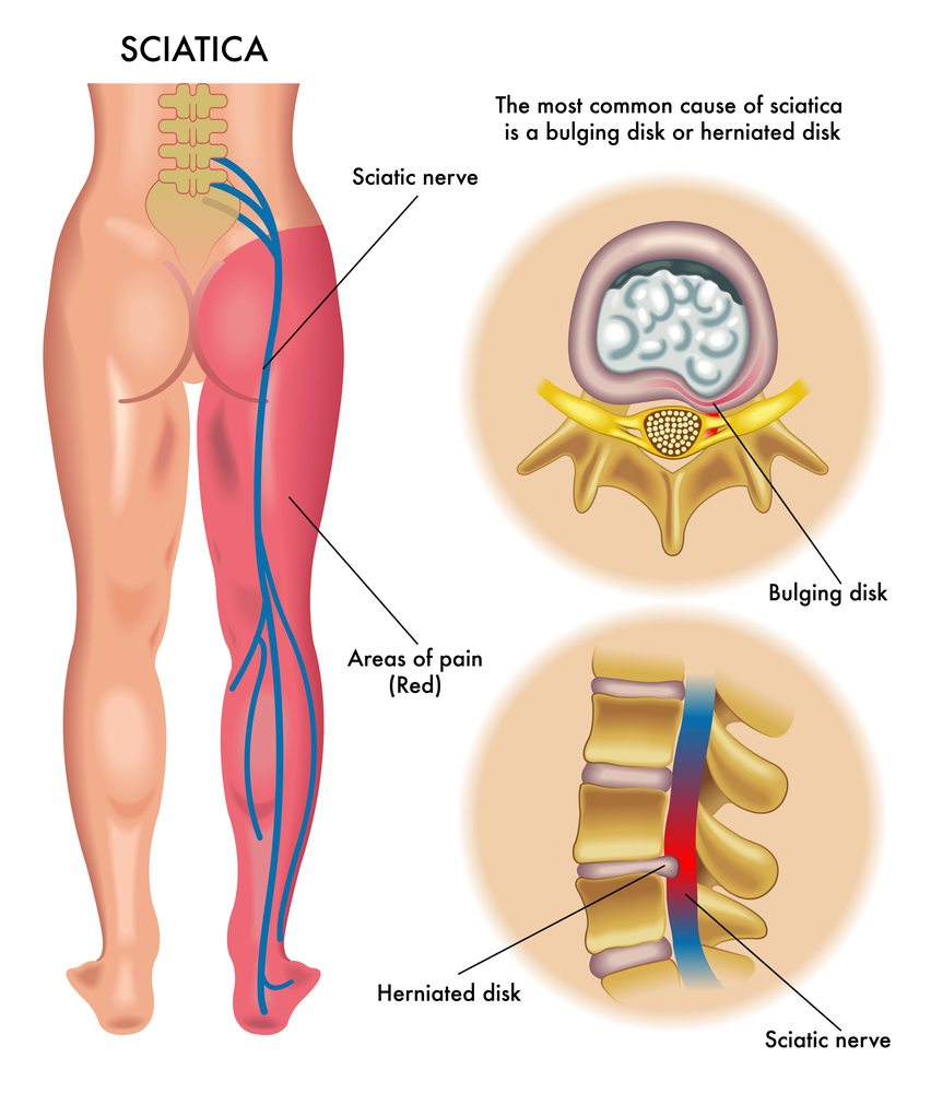 hight resolution of disc nerve pain