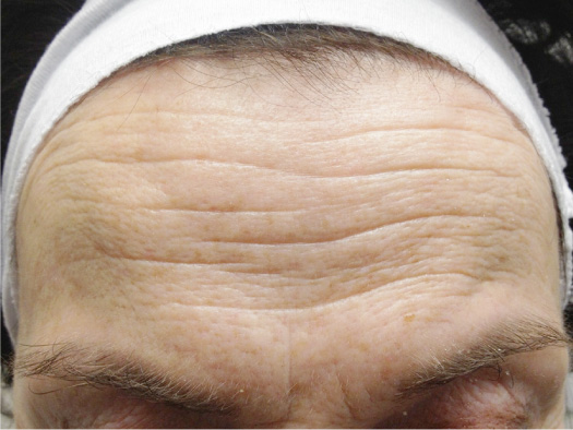 How To Remove Wrinkles From Forehead