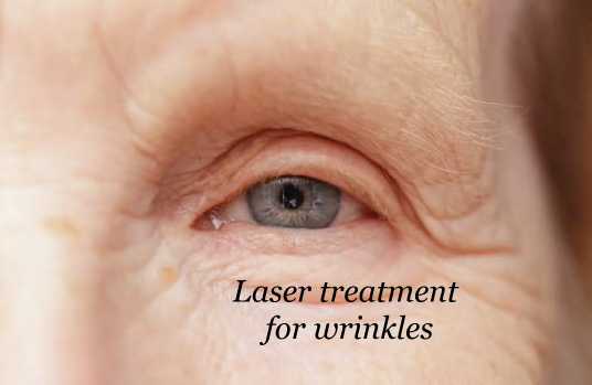 laser treatment for wrinkles