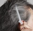 premature grey hair
