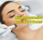 Microdermabrasion for acne