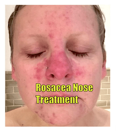 rosacea nose treatment