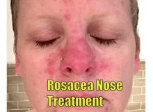 rosacea nose treatment