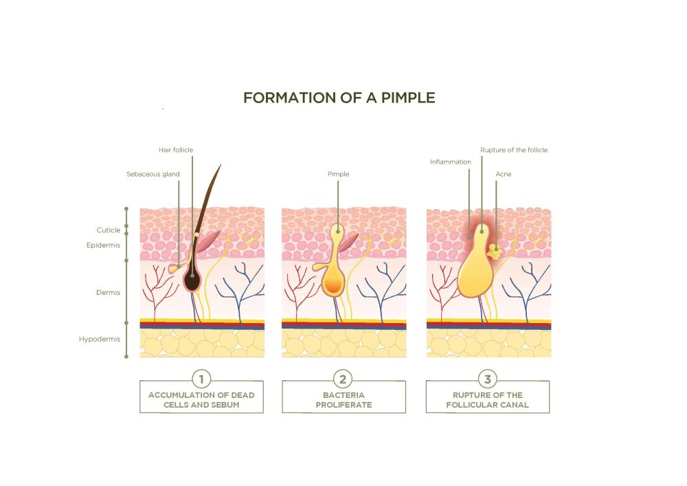 medium resolution of these hair follicles run through the epidermis and dermis the two layers of skin which is bad news for acne sufferers as blocked hair follicles are the
