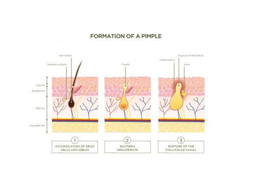 small resolution of these hair follicles run through the epidermis and dermis the two layers of skin which is bad news for acne sufferers as blocked hair follicles are the