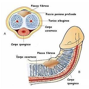 patologia de la peyronie_dott_gabriele_antonini