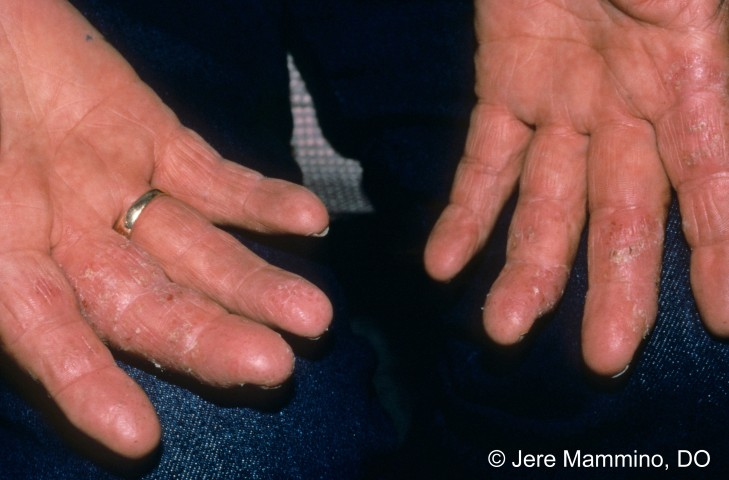 There are many ways a person can get a hand rash, but all have some ...