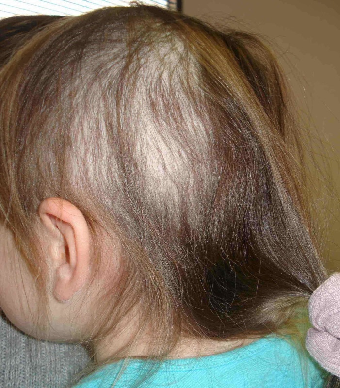 34b9880ab01 A 3-year old female with asymptomatic scalp hair loss – Page 2 ...