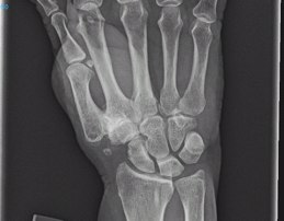 Das Röntgenbild zeigt Arthrose im Daumengelenk