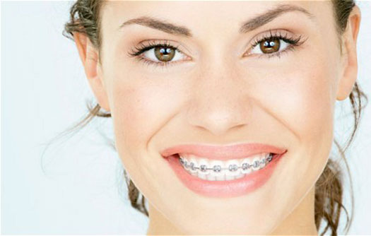 traditional_braces_sz