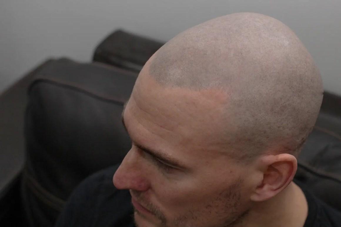 Scalp MicroPigmentation Review - SMP Hair Loss Treatment for Men