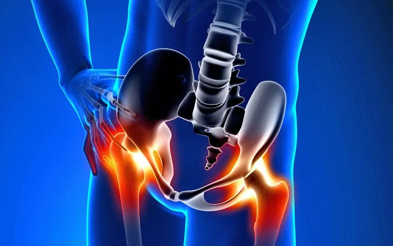 Hip Pain: Causes, Symptoms, and Treatment