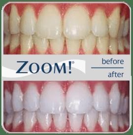 zoom-teeth-whitening-ny