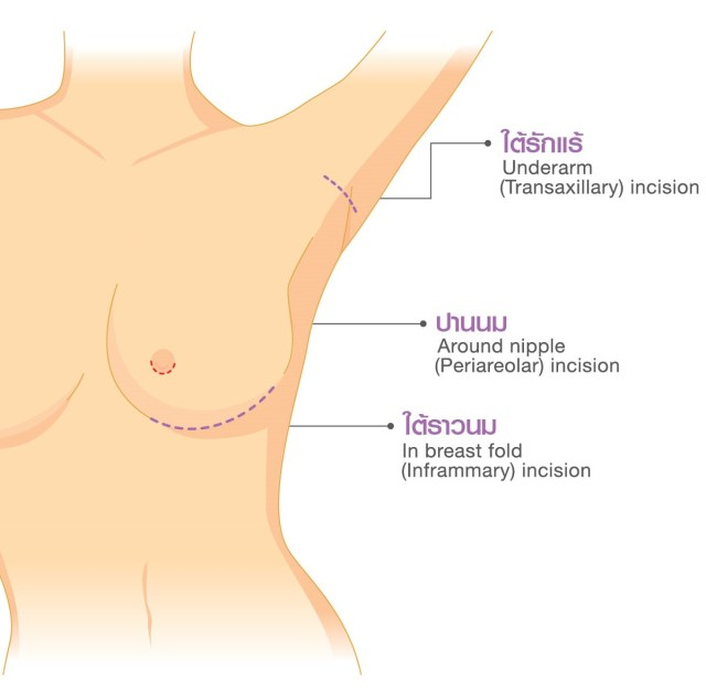 apex-sales-kit-breast-05