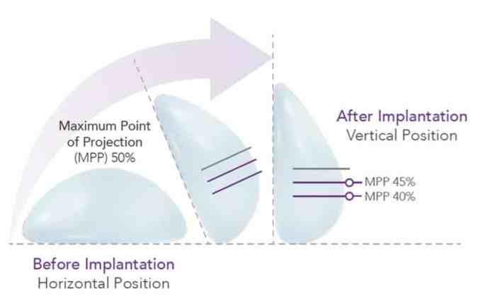 Motiva Breast Implant