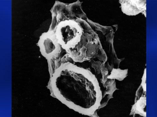 """Naegleria fowleri amoeba brain-eating cell"""
