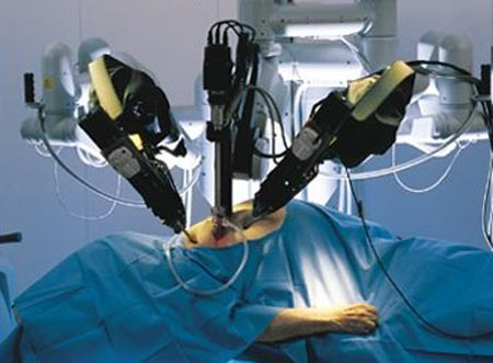 Robotic Surgeons Responsible For 144 Deaths