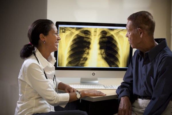"""""""ct scans could detect lung cancer early"""""""