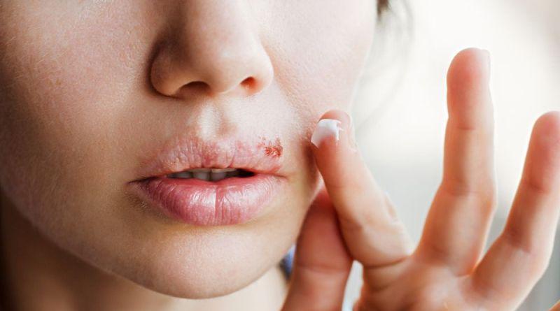 Frau gibt Creme auf Fieberblase