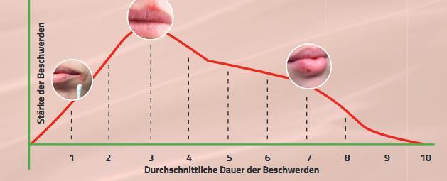 Zyklus des Fieberblasenverlaufs. Fieberblasen