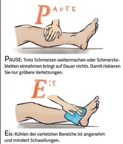 PECH-Methode. Sportverletzungen