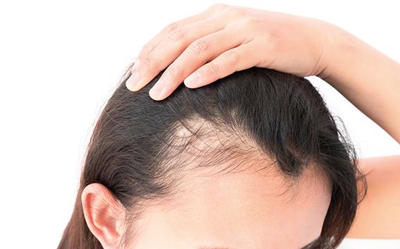 Frau mit lichter werdendem Haaransatz. Frau fährt sich durch Haare. Wechseljahre Haarausfall