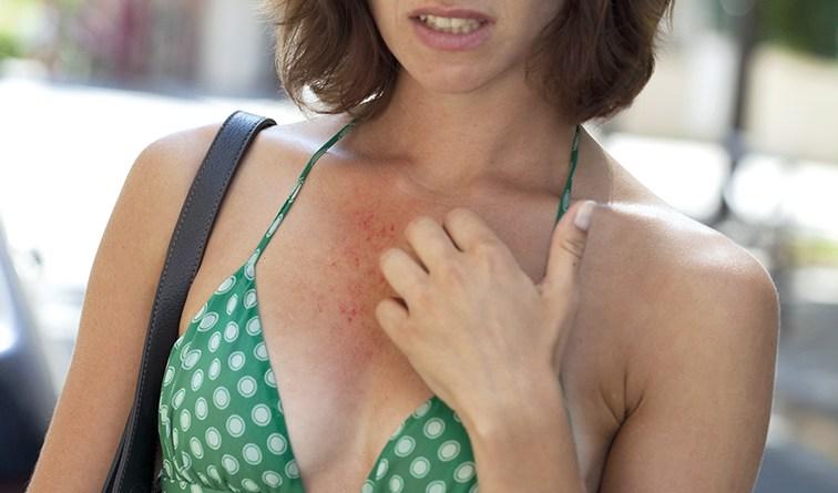 Frau hat Ausschlag am Dekolleté und kratzt sich. Juckreiz. Sonnenallergie