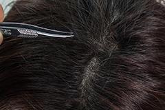 Gesunde Kopfhaut mit Haarwuchs. anlagebedingter Haarausfall