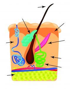 Darstellung/Illustration einer verstopften Talgdrüse. Hautunreinheiten bekämpfen