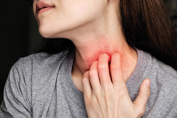 Frau in grauem T-Shirt kratzt sich am Hals. Juckreiz. Juckreiz lindern